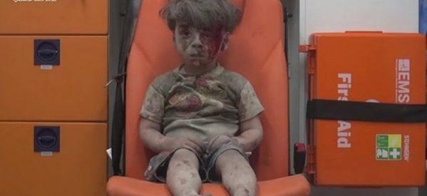 Σύροι γιατροί προς τη Δύση: Αν σοκάρεστε από τα τραυματισμένα παιδιά, κάντε κάτι